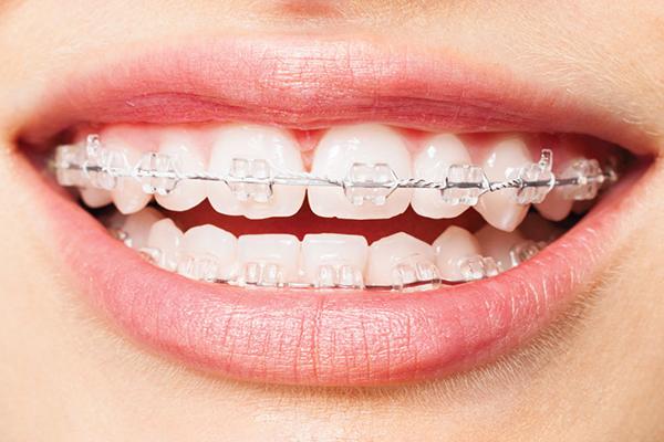 Niềng Lại Răng Lần 2 Có Nên Không? Giá Bao Nhiêu? Niềng Ở Đâu Tốt? - ảnh 1