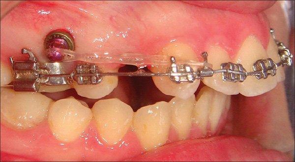 Nhổ Răng Bao Lâu Thì Gắn Niềng Răng? – Nha Khoa Quốc Tế Á Châu - ảnh 1