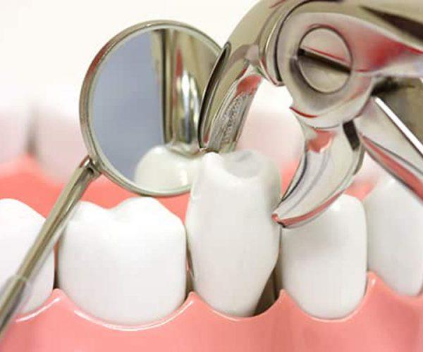 Niềng Răng Phải Nhổ Răng Số 4 Trong Trường Hợp Nào? – Nha Khoa Quốc Tế Á Châu - ảnh 1