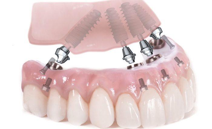 Trồng Răng Implant Toàn Hàm Giá Bao Nhiêu? – Nha Khoa Quốc Tế Á Châu - ảnh 1