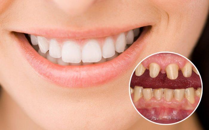 Bọc Răng Sứ Có Làm Răng Yếu Đi Không? – Nha Khoa Quốc Tế Á Châu - ảnh 1