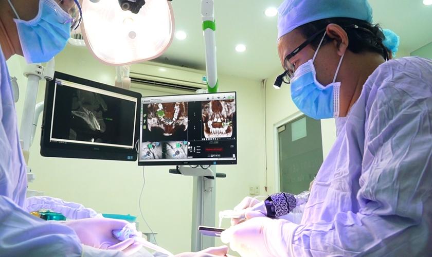 Trồng Răng Toàn Hàm Với Kỹ Thuật Implant All On 4 Và All On 6 - ảnh 13
