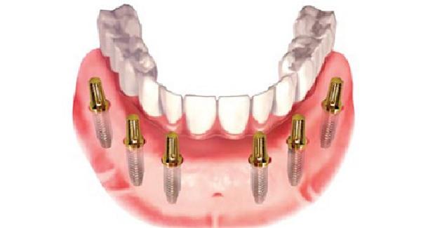 Trồng Răng Toàn Hàm Với Kỹ Thuật Implant All On 4 Và All On 6 - ảnh 14