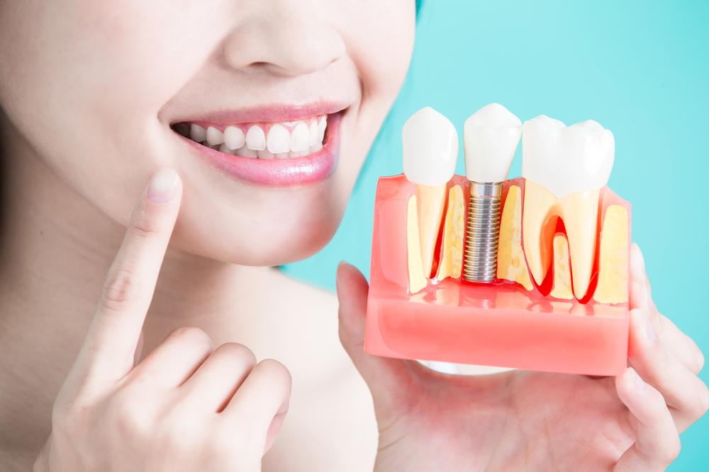Kinh Nghiệm Trồng Răng Implant Cho Người Muốn Thực Hiện - ảnh 2