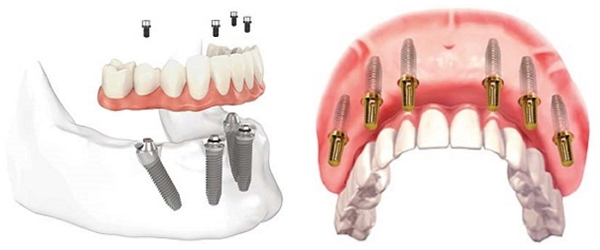 Trồng Răng Toàn Hàm Với Kỹ Thuật Implant All On 4 Và All On 6 - ảnh 2