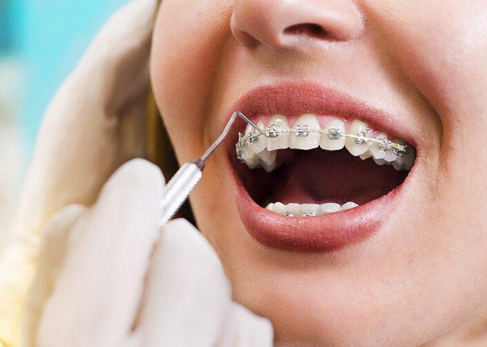 Nhổ Răng Bao Lâu Thì Gắn Niềng Răng? – Nha Khoa Quốc Tế Á Châu - ảnh 2