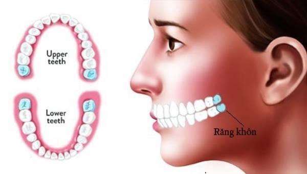 Con Người Có Mấy Chiếc Răng Khôn? – Nha Khoa Quốc Tế Á Châu - ảnh 2