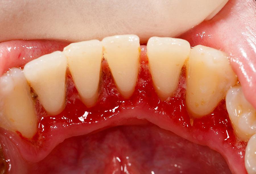 Bao Lâu Lấy Cao Răng 1 Lần? – Nha Khoa Quốc Tế Á Châu - ảnh 2