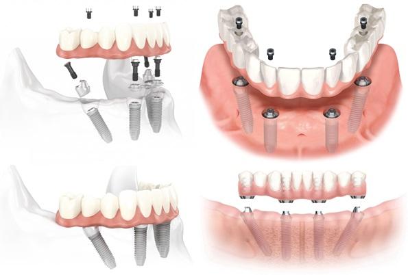 Trồng Răng Implant Toàn Hàm Giá Bao Nhiêu? – Nha Khoa Quốc Tế Á Châu - ảnh 2