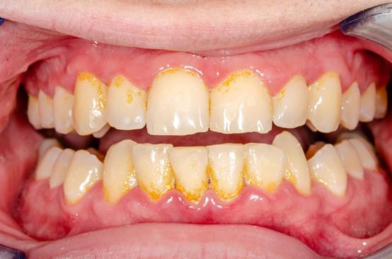 Lấy Cao Răng Có Làm Hỏng Men Răng Không? – Nha Khoa Quốc Tế Á Châu - ảnh 2