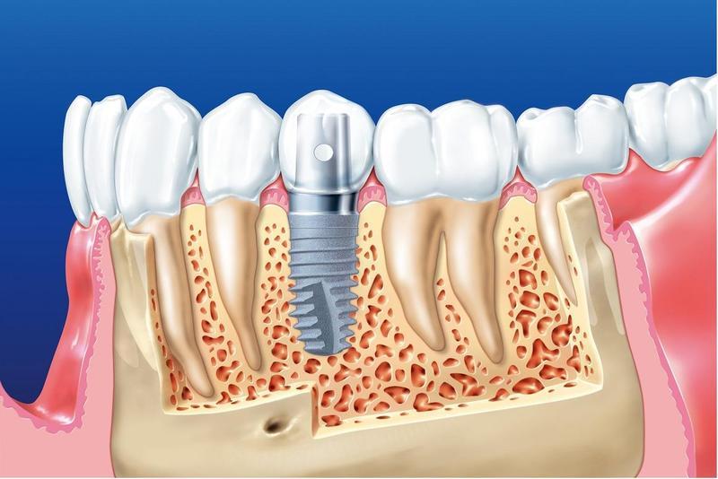 Kinh Nghiệm Trồng Răng Implant Cho Người Muốn Thực Hiện - ảnh 3