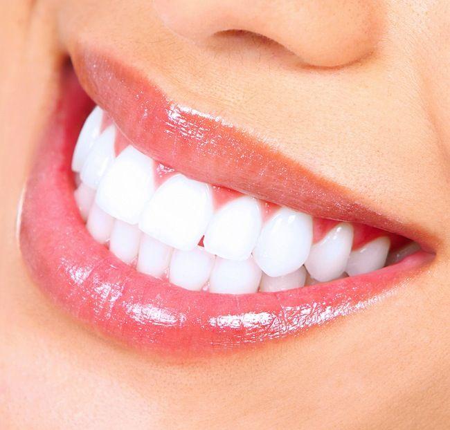 Người Trưởng Thành Có Bao Nhiêu Răng? - Nha Khoa Quốc Tế Á Châu - ảnh 3
