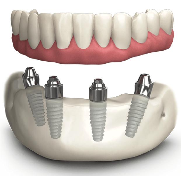 Trồng Răng Toàn Hàm Với Kỹ Thuật Implant All On 4 Và All On 6 - ảnh 3