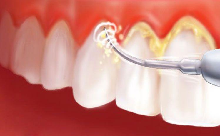 Lấy Cao Răng Có Làm Hỏng Men Răng Không? – Nha Khoa Quốc Tế Á Châu - ảnh 3