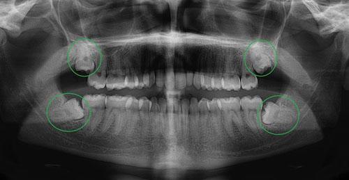 Con Người Có Mấy Chiếc Răng Khôn? – Nha Khoa Quốc Tế Á Châu - ảnh 3