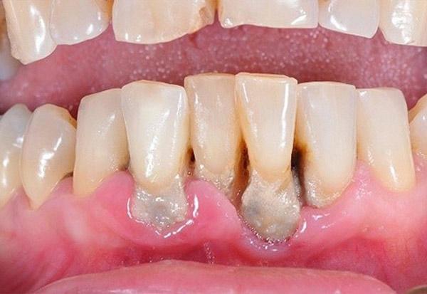 Bao Lâu Lấy Cao Răng 1 Lần? – Nha Khoa Quốc Tế Á Châu - ảnh 3