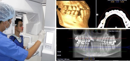 Các Bước Trồng Răng Implant Chuẩn? – Nha Khoa Quốc Tế Á Châu - ảnh 3