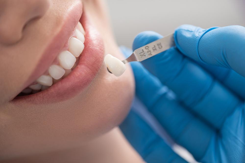 Bọc Răng Sứ Có Làm Răng Yếu Đi Không? – Nha Khoa Quốc Tế Á Châu - ảnh 3