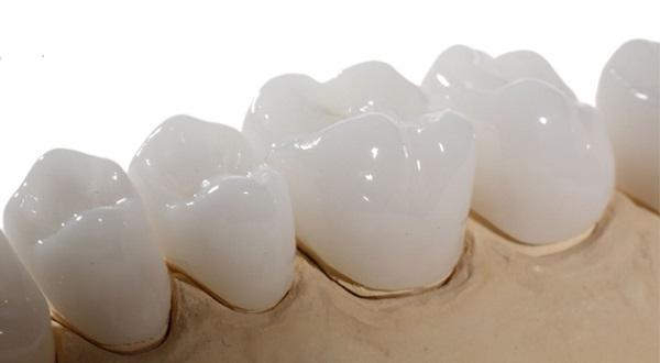 Chính Sách Và Điều Kiện Bảo Hành Răng Sứ – Nha Khoa Quốc Tế Á Châu - ảnh 1