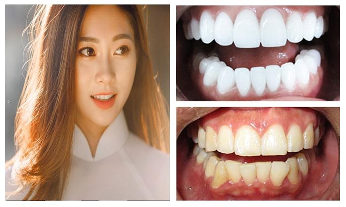 Chính Sách Và Điều Kiện Bảo Hành Răng Sứ – Nha Khoa Quốc Tế Á Châu - ảnh 2