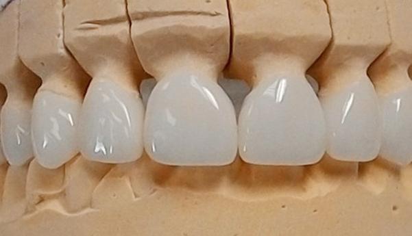 Chính Sách Và Điều Kiện Bảo Hành Răng Sứ – Nha Khoa Quốc Tế Á Châu - ảnh 4