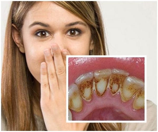 Lấy Cao Răng Có Hết Hôi Miệng Không? – Nha Khoa Quốc Tế Á Châu - ảnh 4