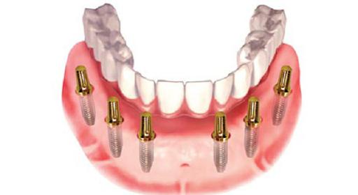 Trồng Răng Toàn Hàm Với Kỹ Thuật Implant All On 4 Và All On 6 - ảnh 4