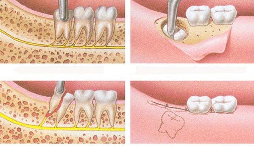 Nhổ Răng Ngầm Có Nguy Hiểm Không? – Nha Khoa Quốc Tế Á Châu- ảnh 4
