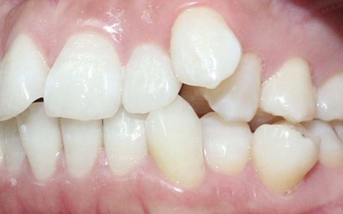 Nhổ Răng Bao Lâu Thì Gắn Niềng Răng? – Nha Khoa Quốc Tế Á Châu - ảnh 4