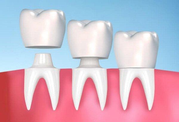 Răng Sứ Thẩm Mỹ Là Gì? – Những Vấn Đề Quan Trọng Bạn Nên Biết - ảnh 4