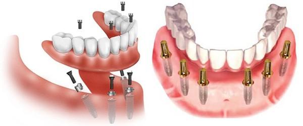 Trồng Răng Implant Toàn Hàm Giá Bao Nhiêu? – Nha Khoa Quốc Tế Á Châu - ảnh 4