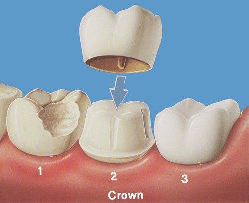 Bọc Răng Sứ Có Làm Răng Yếu Đi Không? – Nha Khoa Quốc Tế Á Châu - ảnh 4