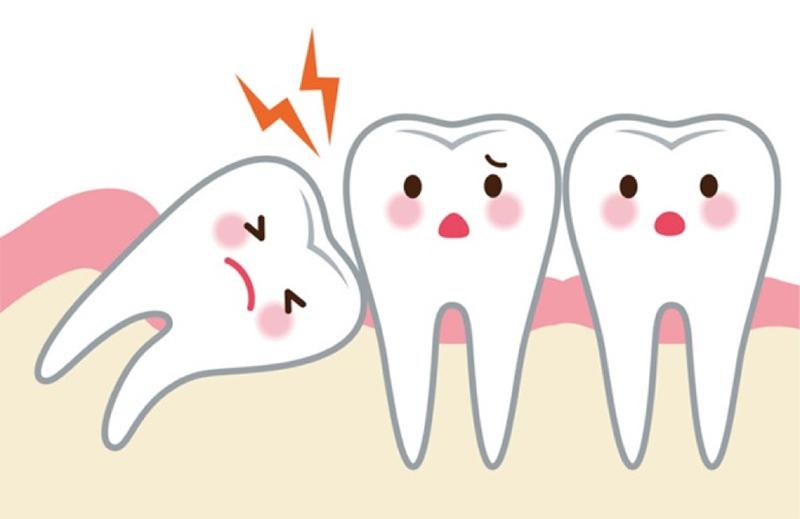 Nhổ Răng Bao Lâu Thì Gắn Niềng Răng? – Nha Khoa Quốc Tế Á Châu - ảnh 5