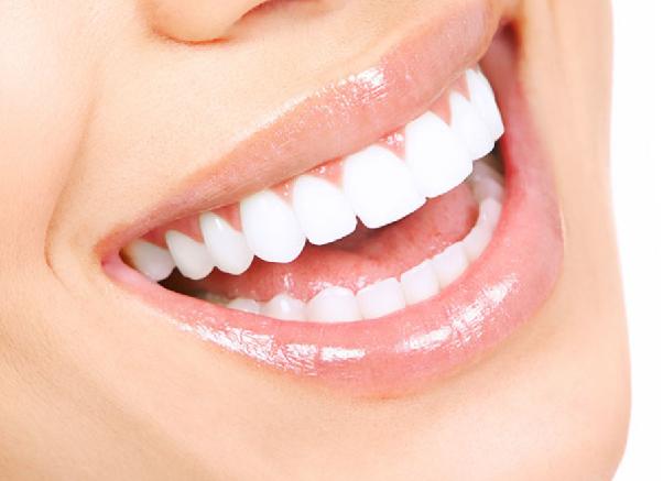 Răng Sứ Thẩm Mỹ Là Gì? – Những Vấn Đề Quan Trọng Bạn Nên Biết - ảnh 5