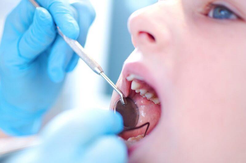 Lấy Cao Răng Có Làm Hỏng Men Răng Không? – Nha Khoa Quốc Tế Á Châu - ảnh 5