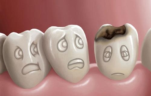 Con Người Có Mấy Chiếc Răng Khôn? – Nha Khoa Quốc Tế Á Châu - ảnh 4
