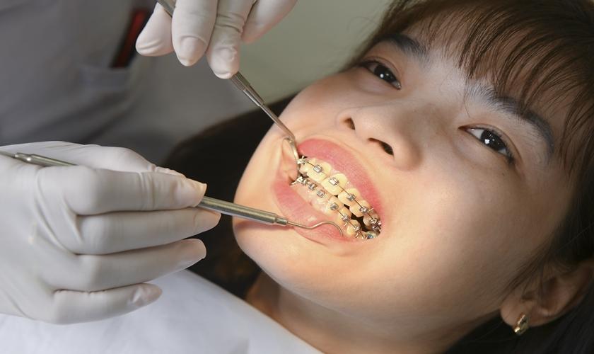 Các Bước Niềng Răng Chuẩn? [Cập Nhật 2021] – Nha Khoa Quốc Tế Á Châu - ảnh 5