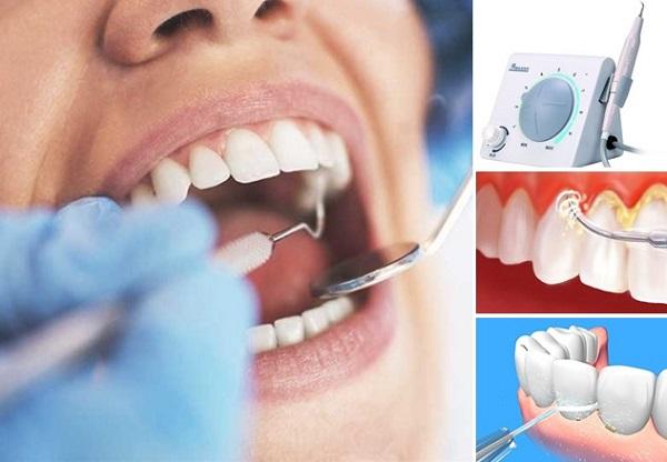 Lấy Cao Răng Có Hết Hôi Miệng Không? – Nha Khoa Quốc Tế Á Châu - ảnh 6