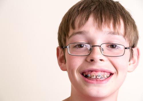Răng Hô Ở Trẻ Em Phải Làm Sao? – Dấu Hiệu Nhận Biết Và Cách Khắc Phục - ảnh 6