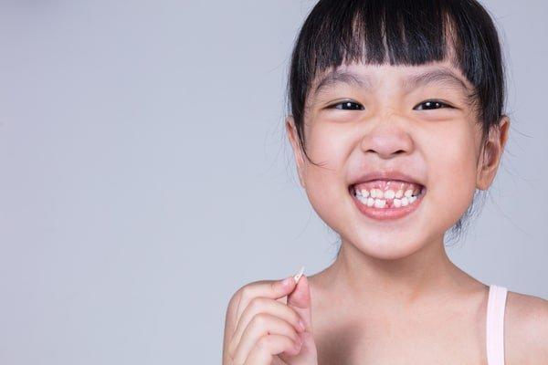 Nhổ Răng Bao Lâu Thì Gắn Niềng Răng? – Nha Khoa Quốc Tế Á Châu - ảnh 6