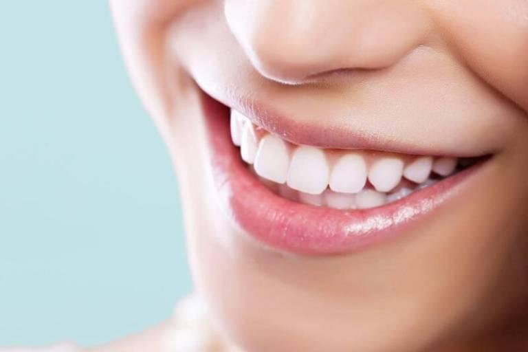 Răng Sứ Thẩm Mỹ Là Gì? – Những Vấn Đề Quan Trọng Bạn Nên Biết - ảnh 6