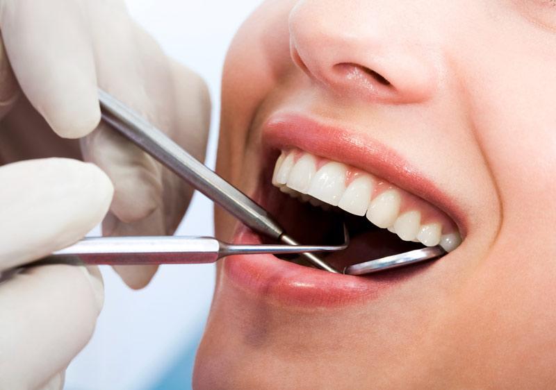 Bao Lâu Lấy Cao Răng 1 Lần? – Nha Khoa Quốc Tế Á Châu - ảnh 6