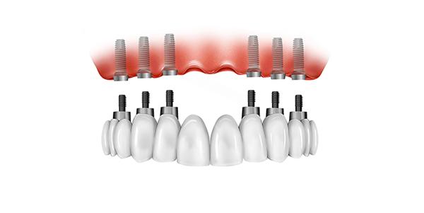 Trồng Răng Implant Toàn Hàm Giá Bao Nhiêu? – Nha Khoa Quốc Tế Á Châu - ảnh 6