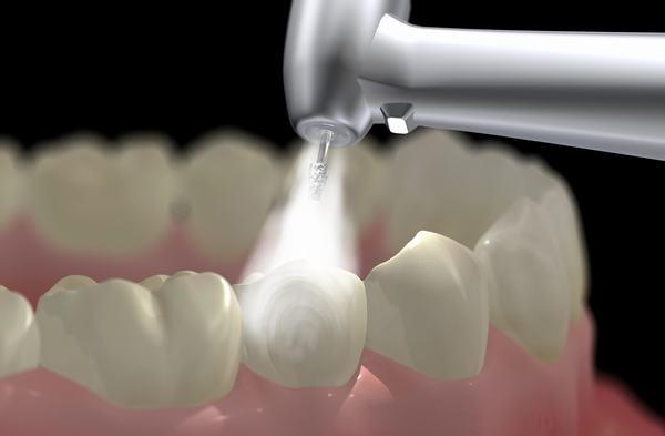 Bao Lâu Lấy Cao Răng 1 Lần? – Nha Khoa Quốc Tế Á Châu - ảnh 7