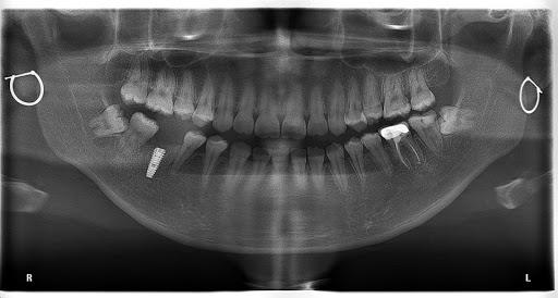 Các Bước Trồng Răng Implant Chuẩn? – Nha Khoa Quốc Tế Á Châu - ảnh 7