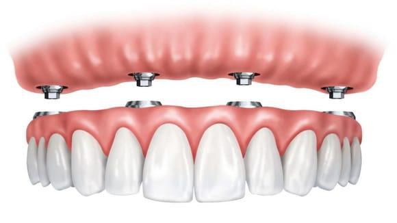 Trồng Răng Implant Toàn Hàm Giá Bao Nhiêu? – Nha Khoa Quốc Tế Á Châu - ảnh 7