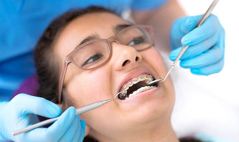 Niềng Răng Phải Nhổ Răng Số 4 Trong Trường Hợp Nào? – Nha Khoa Quốc Tế Á Châu - ảnh 8