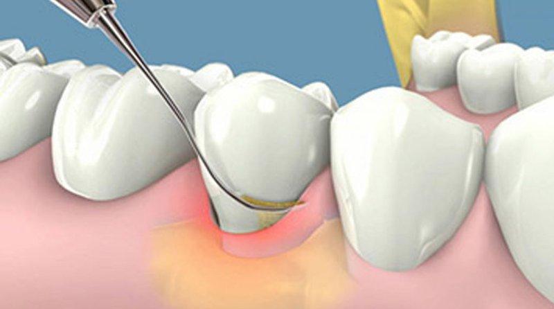 Lấy Cao Răng Có Làm Hỏng Men Răng Không? – Nha Khoa Quốc Tế Á Châu - ảnh 7