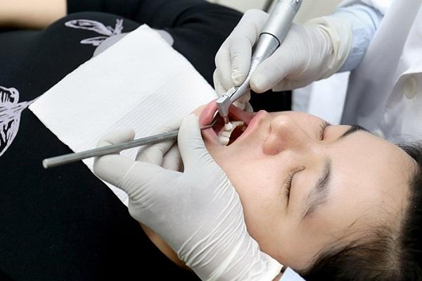 Bao Lâu Lấy Cao Răng 1 Lần? – Nha Khoa Quốc Tế Á Châu - ảnh 8