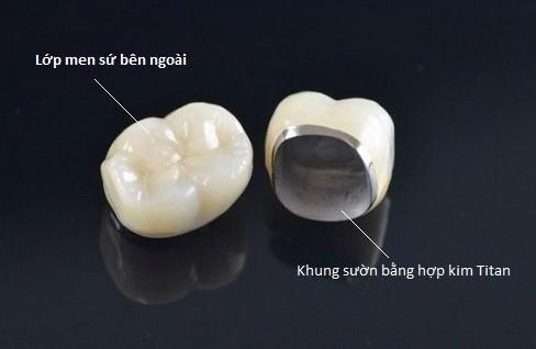 Bọc Răng Sứ Có Làm Răng Yếu Đi Không? – Nha Khoa Quốc Tế Á Châu - ảnh 8